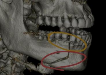 Castelli admite que quebrou mandíbula em agressão, não acidente: 'Minha boca estava pendurada'