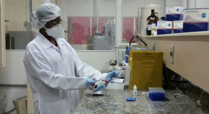 Governo Bolsonaro cortou 69% da cota de importação para pesquisas científicas