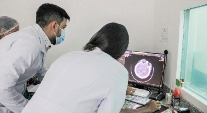Programa 'AVC dá Sinais' realiza primeira trombectomia mecânica em paciente alagoana